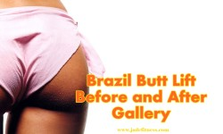 brazil butt lift before and after gallery
