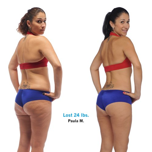 Paula's Brazil Butt Lift results with before and after
